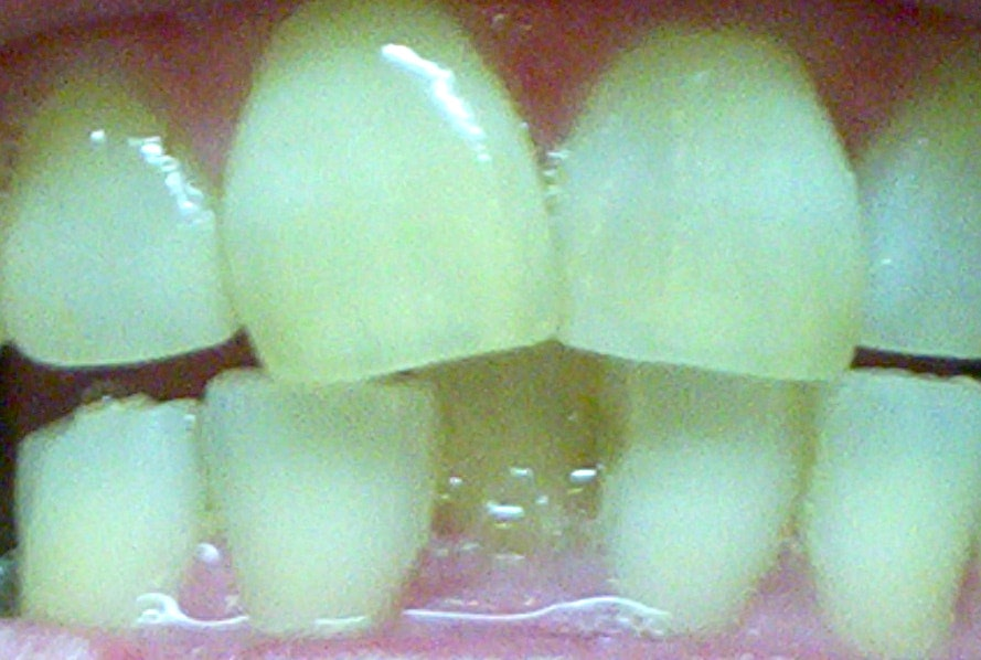 close up photo of crowded front teeth